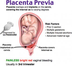 Vasa-Previa-Risks-in-pregnancy