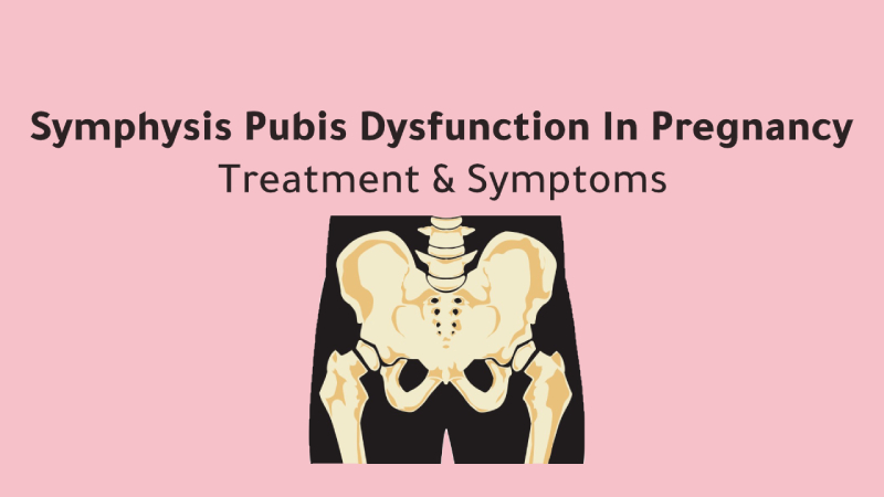 Symphysis Pubis Dysfunction In Pregnancy
