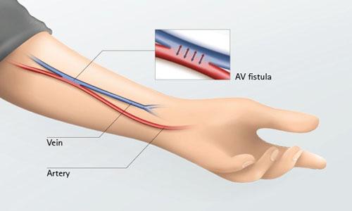 AV-Fistula