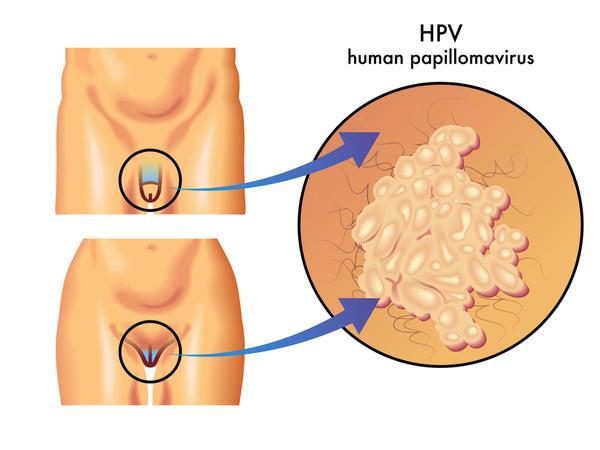 HPV-vaccine-boys-girls