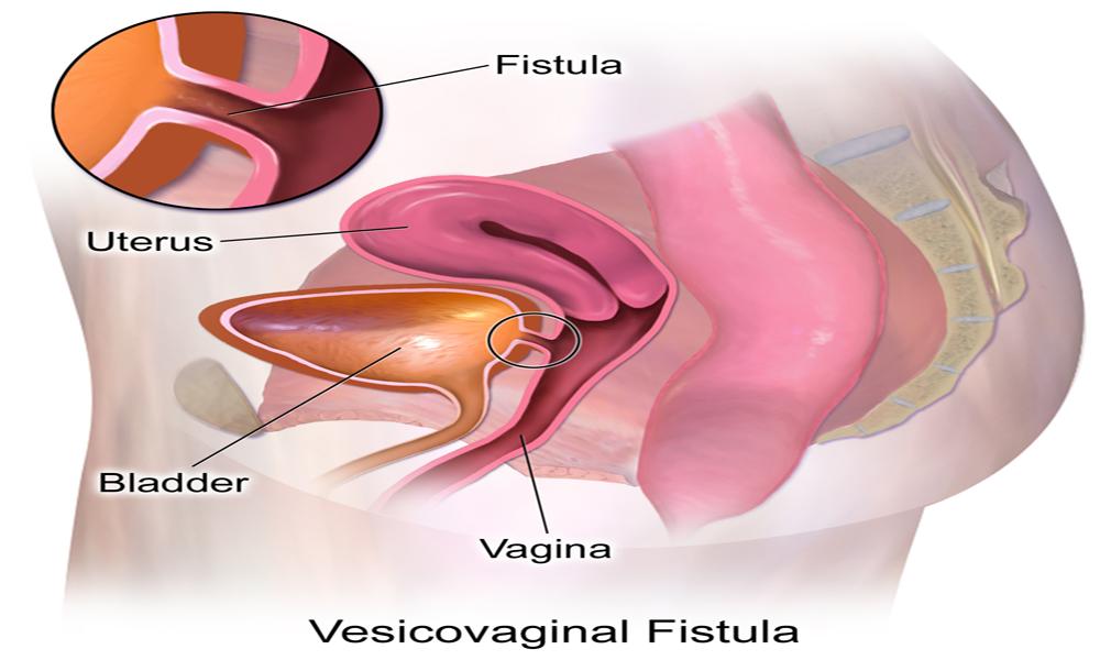 Vesicovaginal-Fistula